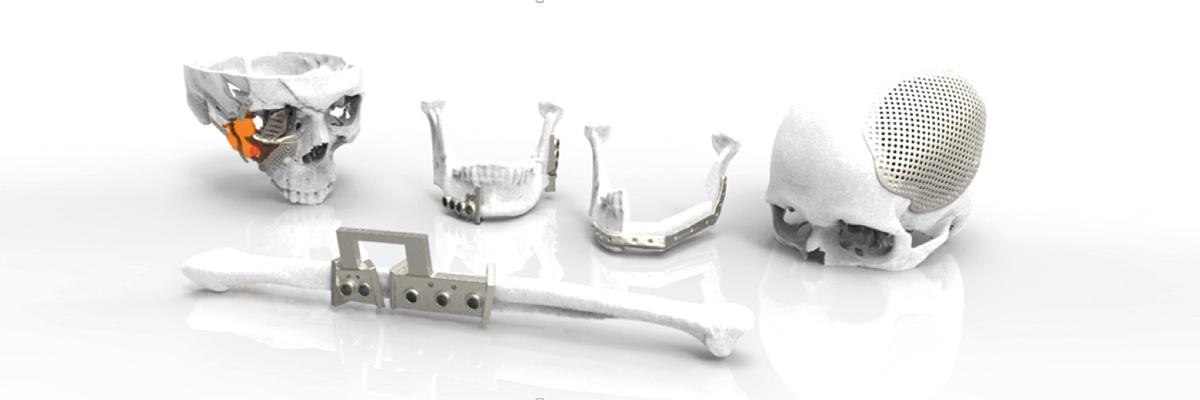 Reconstrucción maxilofacial